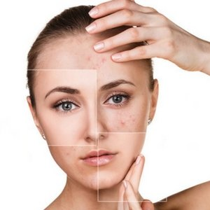Adult Acne - The Causes and Treatments - Ellis James Designs Blog
