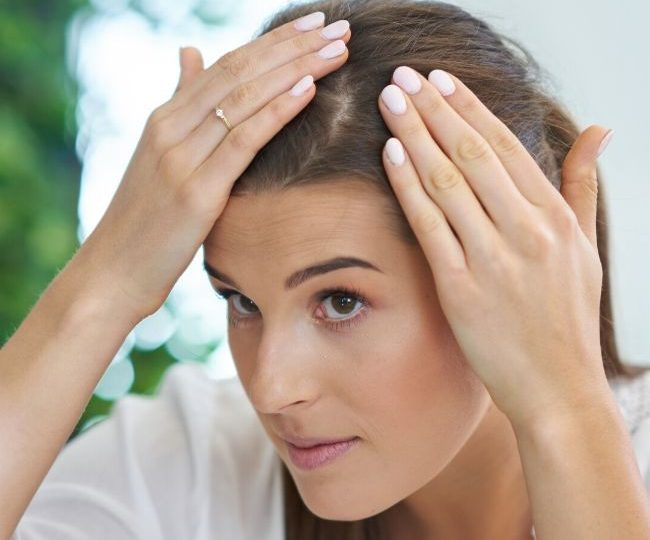 How to Moisturize Your Scalp Without Greasy Hair