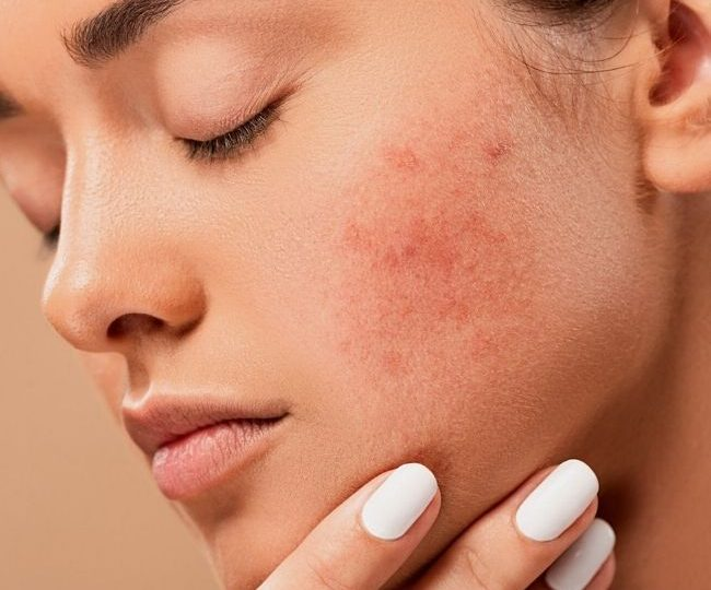 The Ordinary Products for Acne: What Ordinary Products Can Help Acne Problems?