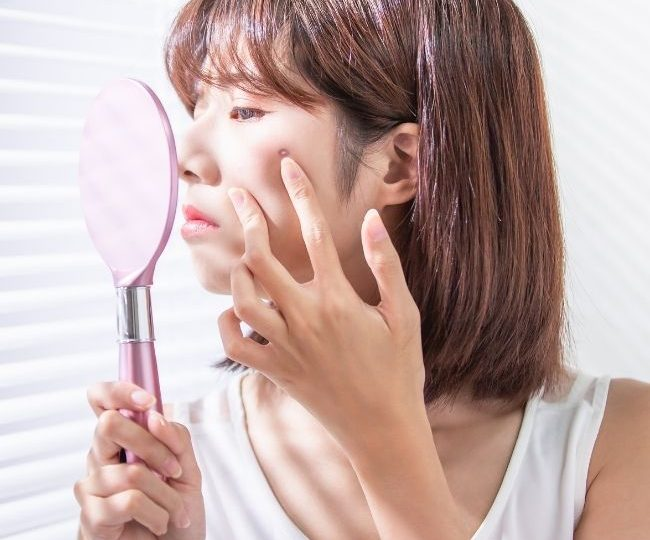 Acne Prone Definition – What is the Meaning of an Acne Prone Skin Type?
